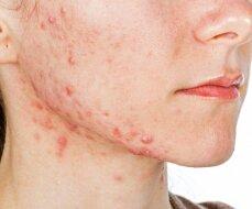 Apgaulingas saulės poveikis odai – aknė užmaskuojama, tačiau sugrįžta dar stipresnė
