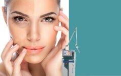 Norinčioms atsukti laiką atgal - odos jauninimo procedūra