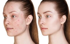 Ar žinai, kuri tavo veido pusė gražesnė?