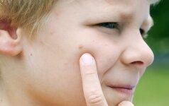 Paprasčiausias būdas, kuris efektyvus įkandus uodui: tinka ir vaikams