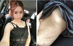 4 vaikų mama parodė savo pilvą po gimdymo