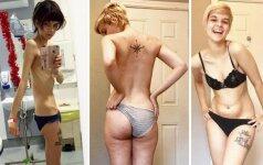 Įveikusi anoreksiją, tapo Instagramo žvaigžde: svėriau kaip penkių metų vaikas