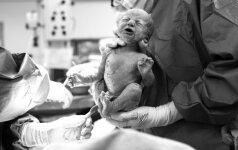 NEĮTIKĖTINA: nufilmavo cezario pjūvio operaciją, kokios pasaulis dar nematęs