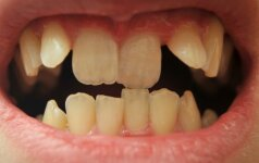 Kreivi dantys – kada jau laikas sunerimti?
