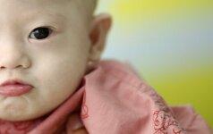 Sužinoję apie Dauno sindromą, tėvai pasielgė nežmoniškai FOTO