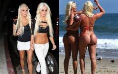 """Garsiųjų """"Playboy"""" dvynių pokyčiai: idealius kūnus sudarkė vardan populiarumo"""