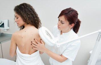 Gerybiniai ir piktybiniai odos dariniai: kaip juos atskirti?