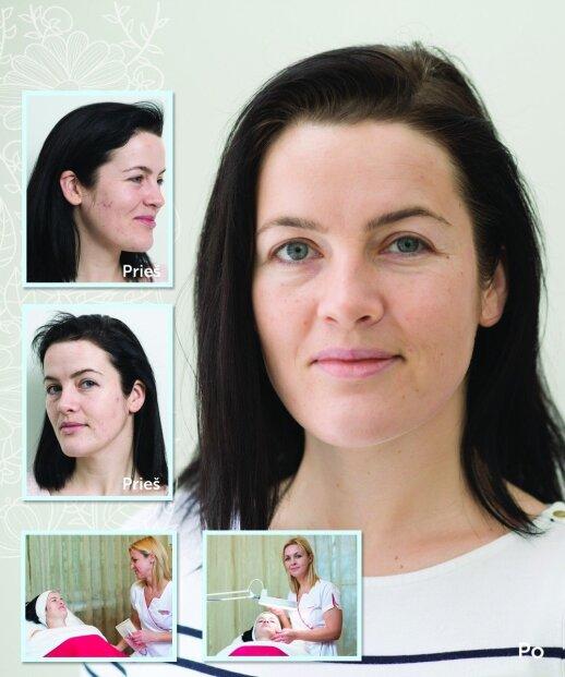 Didžiausios klaidos, kurias daro trisdešimtmetės, prižiūrėdamos odą
