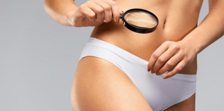 Paslaptingoji endometriozė - moterų liga, kuri slepiasi po įprastais simptomais