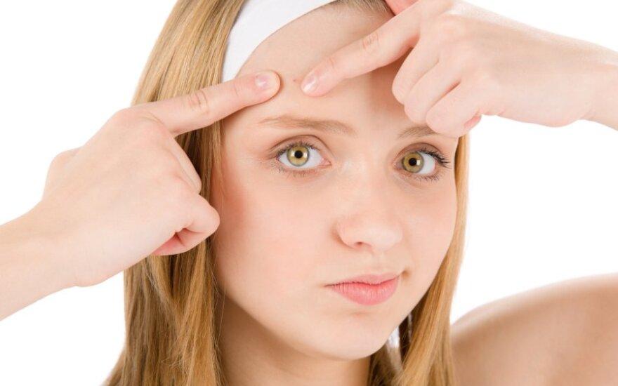 Кризис на коже: когда стоит обратиться к врачу?