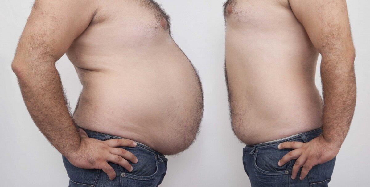 ms ir nesugebėjimas numesti svorio