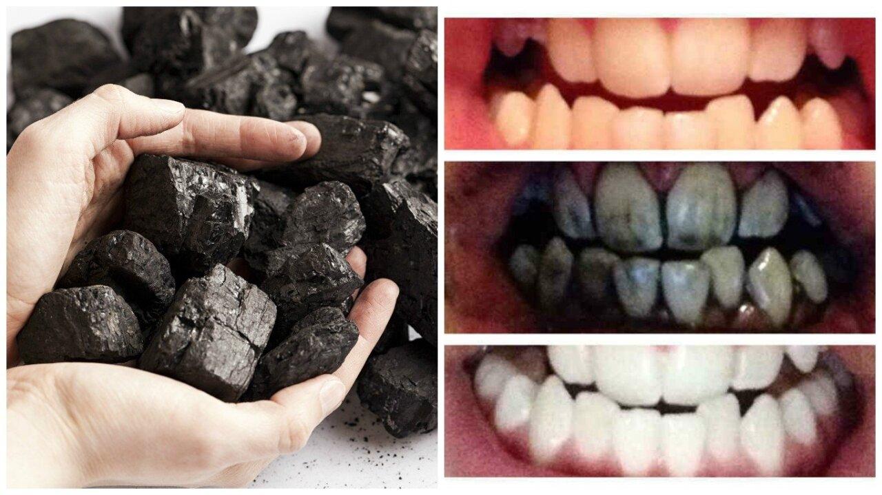 krikstenudvaras.lt - Visa tiesa apie dantų balinimą