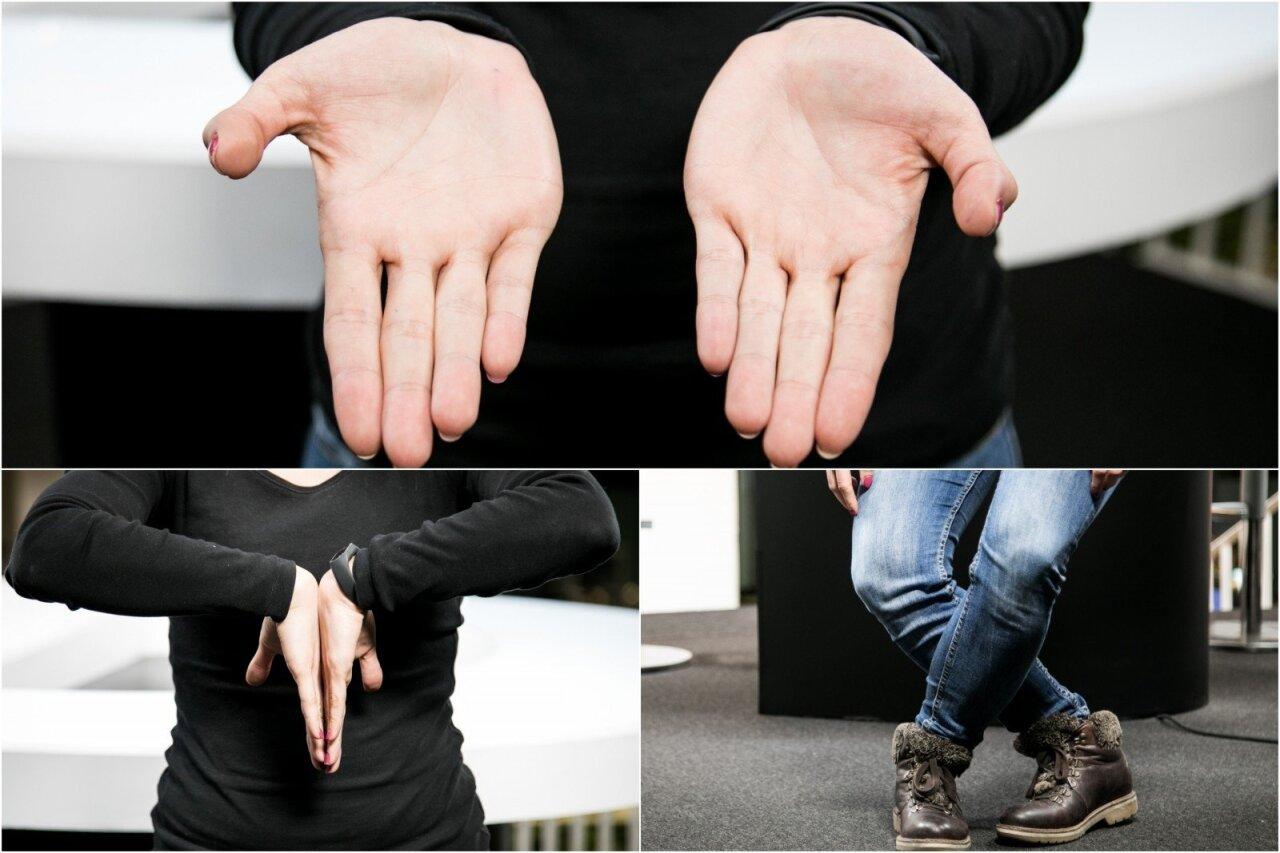 kaip prarasti riebalinius riešus