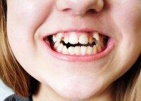 Kreivai sudygę dantys: juos ištiesinti įmanoma ir be breketų