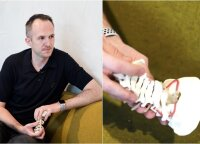 Neurochirurgas papasakojo, ko vandenyje pats niekada nedarytų: medikai tegalės padėti vėl išmokti valgyti