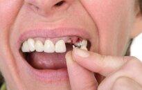 Lietuva – ne Afrika: 150 senolių gali likti be dantų