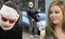 Tūkstančius plastinei operacijai išleidusi JAV televizijos žvaigždė: nenoriu atrodyti kaip sena raukšlėta sėklidė