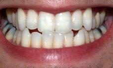 Protiniai dantys: galimos problemos ir jų sprendimo būdai