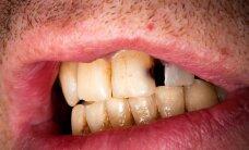 Kiek kainuoja tiesūs dantys?