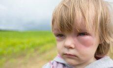 Lietuvoje daugėja įvežtinių dengė karštligės atvejų