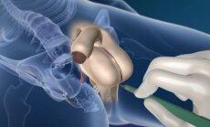 Medikai parodė, kaip penis transformuojamas į vaginą
