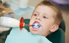 Ar vaikas bijos odontologo, priklauso ir nuo tėvų