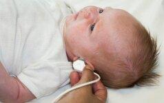 Šis svarbus tyrimas naujagimiams atliekamas dar gimdymo namuose