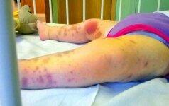 Reta liga susirgusi mergaitė atrodė taip, tarsi būtų smarkiai sumušta FOTO