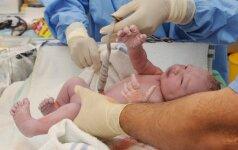 Amerikoje plintanti nauja gimdymo mada Lietuvoje dar nežinoma (gydytojų komentarai)