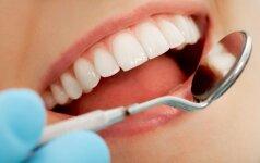 5 mitai apie dantų protezavimą