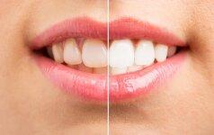 Dantų balinimas namuose: šypsena akinančiai spindės lyg ką tik išėjus iš stomatologo
