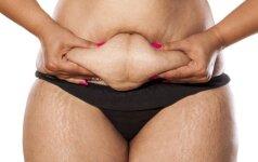 Anticeliulitinė DIETA - 7 kg per 10 dienų