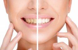Dantų balinimas namuose: veiksmingiausi būdai ir labiausiai kenkiantis maistas