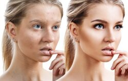 4 žingsnių sistema spuoguotos odos priežiūrai ir kovai su akne