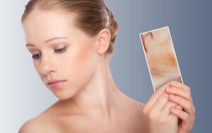 Lazeris – efektyviausia veido raudonio gydymo priemonė