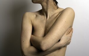 Gydytoja onkologė – apie vieną svarbiausių odos vėžio priežasčių