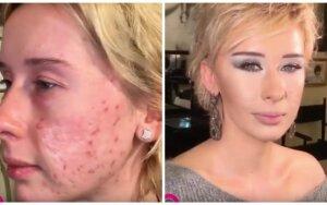 Grožio pokyčiai – net ir randuoto veido moteris gali tapti gražuole! VIDEO