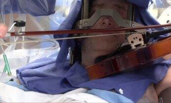 Operacija, kokių reta: atvira kaukole griežė smuiku