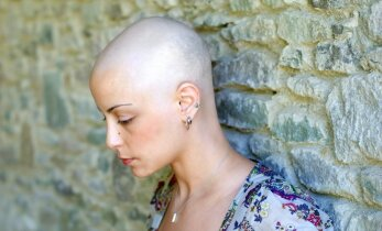 Higienos priemonė sukėlė pavojų: mergina atsidūrė reanimacijoje, nuslinko visi plaukai