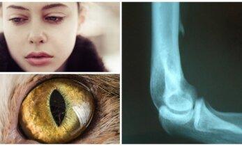Mergaitės kūne rado tai, kas būdinga katėms, driežams ir sterbliniams