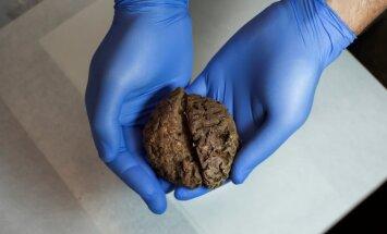 Rastos išlikusios smegenys