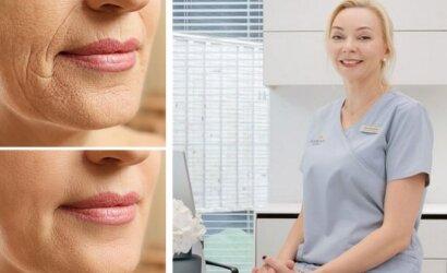 Gydytoja papasakojo, kurios odos atjauninimo procedūros pačios veiksmingiausios