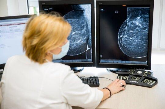 Diagnozę moteris išgirdo netikėtai: nesureikšminau raginimų išsitirti rimčiau, o vėžys jau buvo trečios stadijos