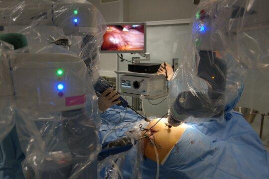 Robotinės operacijos fragmentas