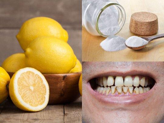 Odontologės įvardijo dažniausius dantų priežiūros mitus: dėl šių įpročių galite likti bedančiai