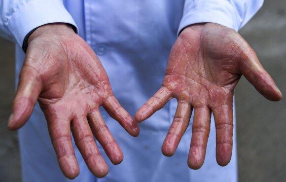 dezinfekcinis skystis