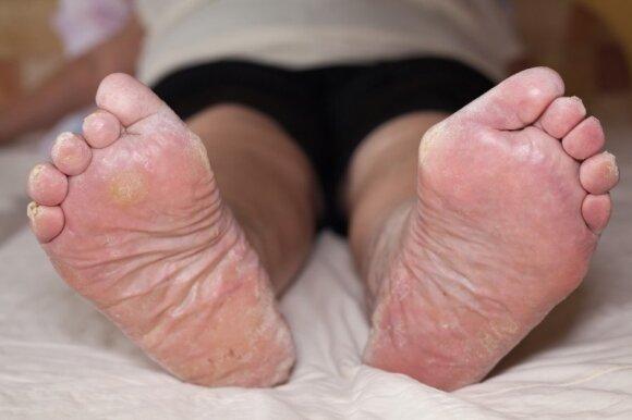 Karpos, grybeliai, nuospaudos ir kita bjaurastis, tykanti mūsų pėdų