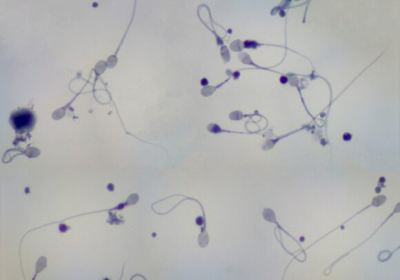 Gydytojas įvardija didžiausius vyriškumo priešus: kas kenkia spermai ir visam vaisingumui