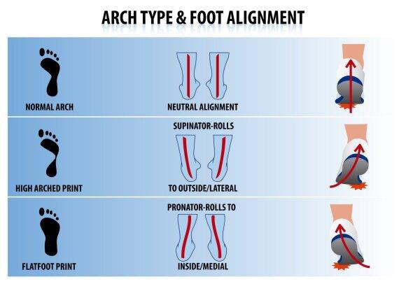 Pėdos skliautų išlinkimo tipai: normalus išlinkimas (normal); aukštas išlinkimas (high) ir plokščiapėdystė (flatfoot).