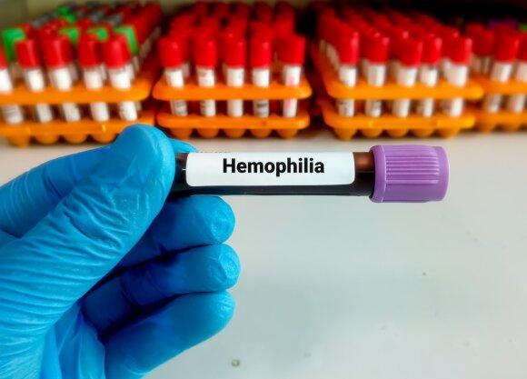 Hemofilija